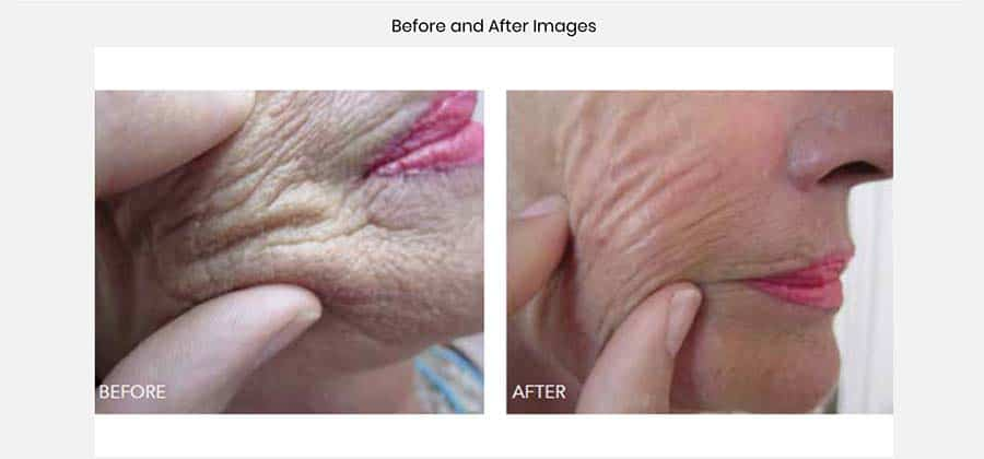 Skin beauty booster, before and after, face