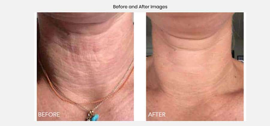 Skin beauty booster, before and after, neck