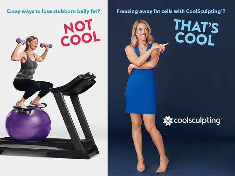 Freezing away fat cells with Coolsculpting