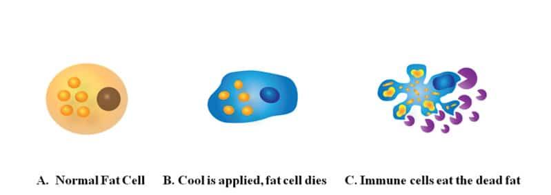 Cryolipolysis