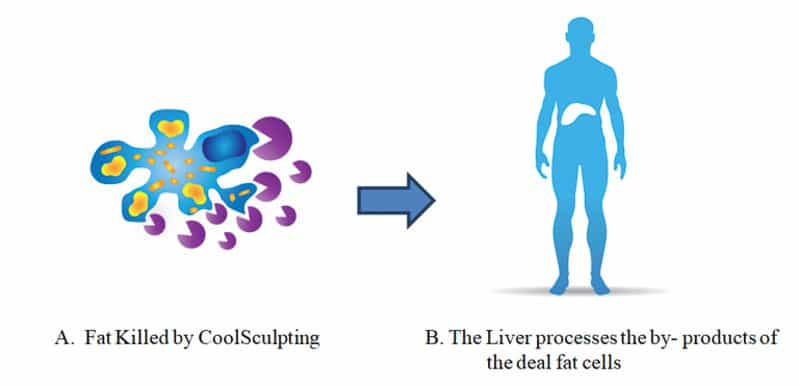 Fat killed by Coolsculpting