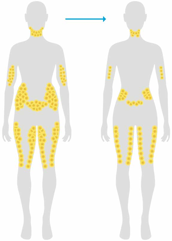 Best areas for coolsculpting