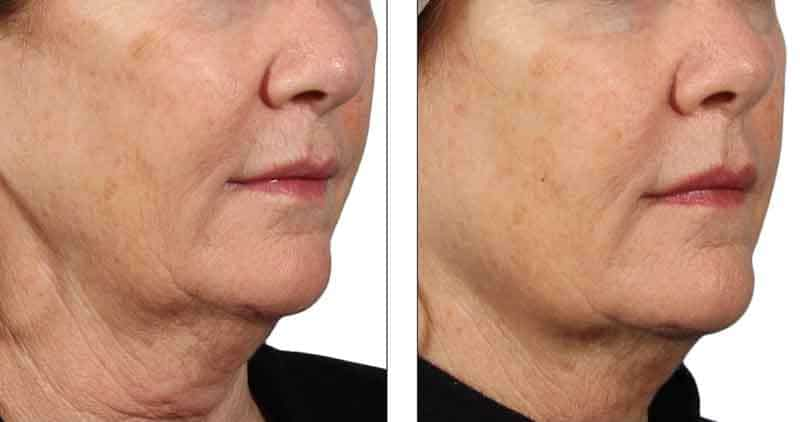 Venus Diamond Polar Facial Skin Tightening