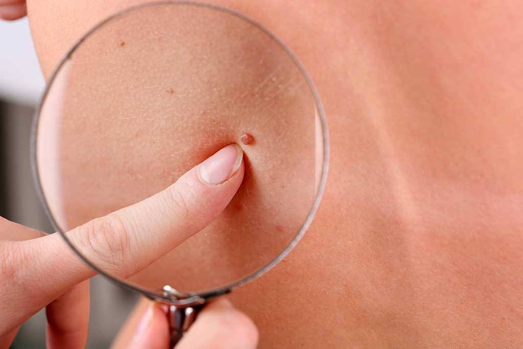 Moles and skin tags