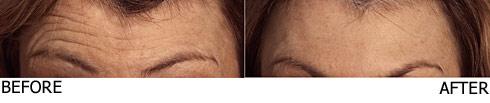 Botox-ForeheadLines