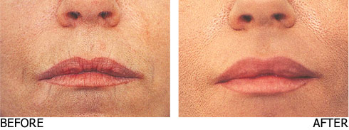 Filler-lip-enhancement