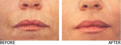 Filler-lip-enhancement