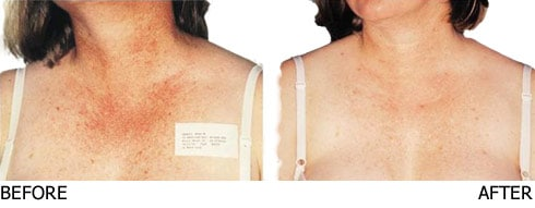 IPL-for-Sun-Damage-Chest-and-Neck