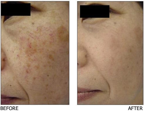IPL-for-blood-vessels-and-pigment
