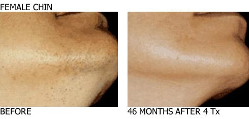Laserhairremoval_Chin