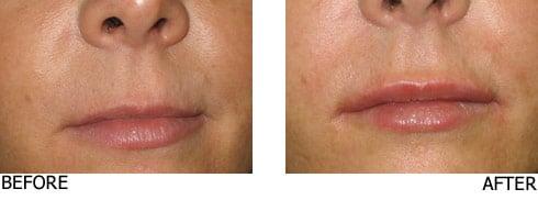 Lip-Enhancement2