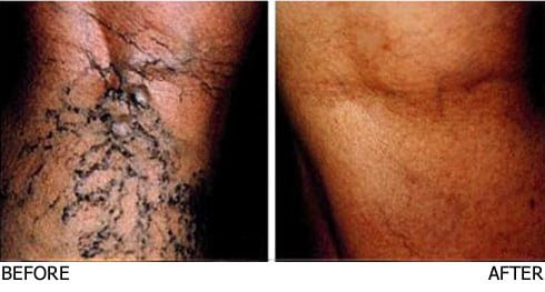 Sclerotherapy-Large-Vein