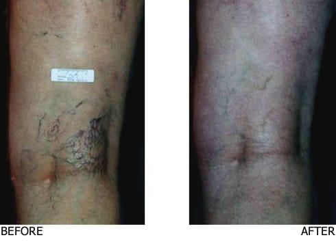 Sclerotherapy-Medium-Vein