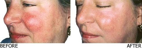 Vascular-Laser-for-broken-vessels