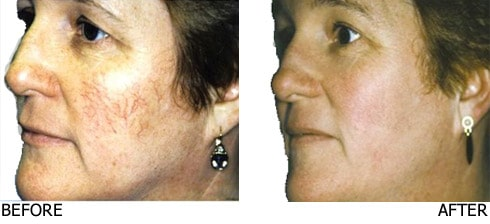 Vascular-Laser-for-cheek-and-nose-veins