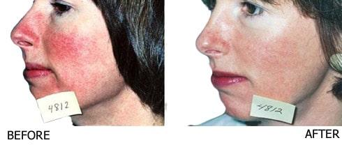 Vascular-laser-for-Rosacea