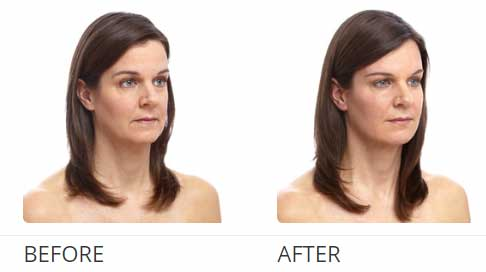 Skin before and after women
