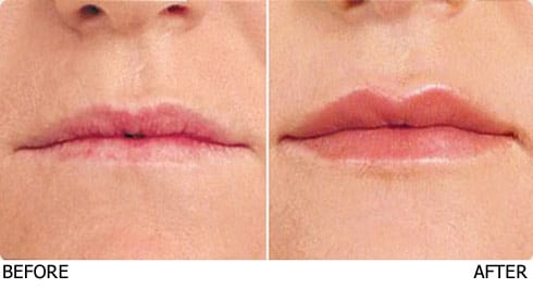 lip-enhancement1
