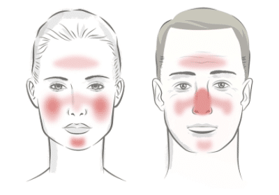 Rosacea Treatment Zones