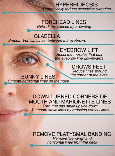 Botox Guide