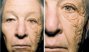 man with sun damage on face