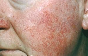 rosacea-symptoms_ETR