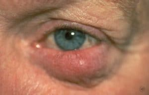rosacea_symptoms-ocular