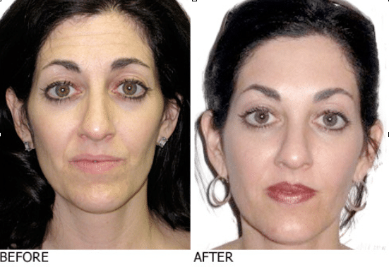 Michele before & after